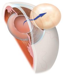 Premium Cataract Surgery | Cataract Surgeons | Lens Implants | Marietta