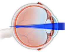 Astigmatism Treatment | Astigmatism Implants | LASIK | PRK | Marietta